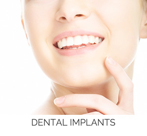 dental implants shreveport bossier